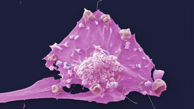 cell-breast-cancer.jpg