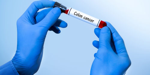 Colorectal Cancer A Serious But Preventable Disease