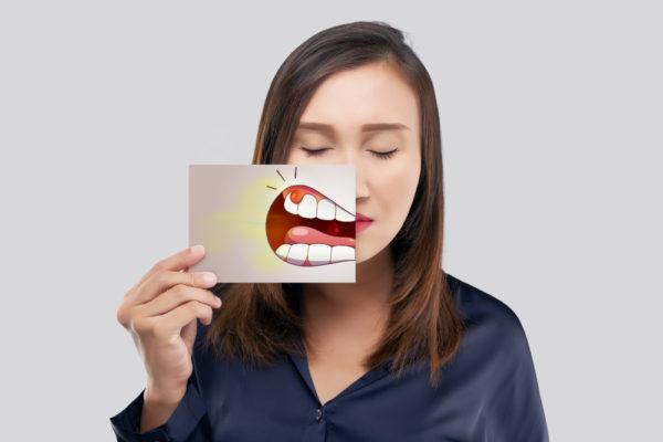 改變口腔癌的腫瘤治療模式